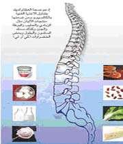 سوء التغذية تتسبب بهشاشة العظام لدي الاطفال
