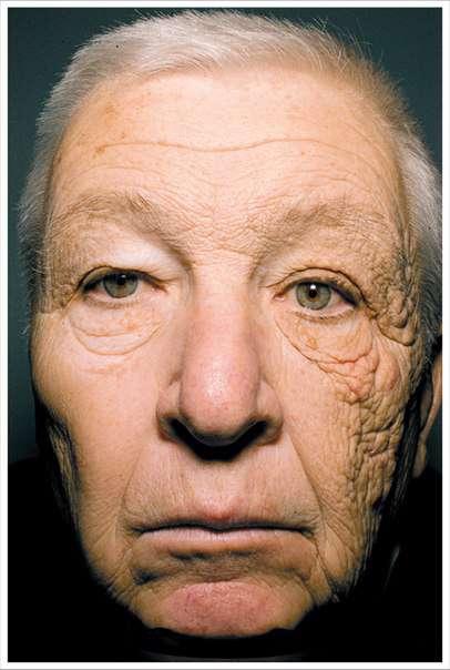 اثر تخریبی آفتاب بعد از 28 سال رانندگی روی پوست