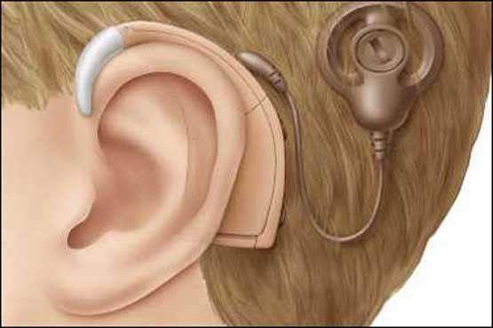 ایران سومین کشور جهان در جراحی کاشت حلزون شنوایی است