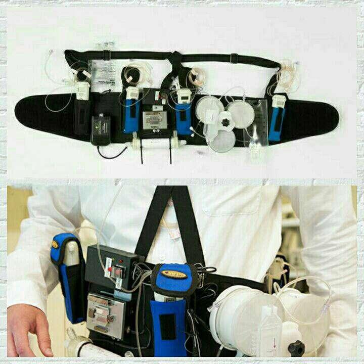 اولین نمونه آزمایشی کلیه مصنوعی پوشیدنی برای بیماران کلیوی دیالیزی و نیازمند به پیوند کلیه