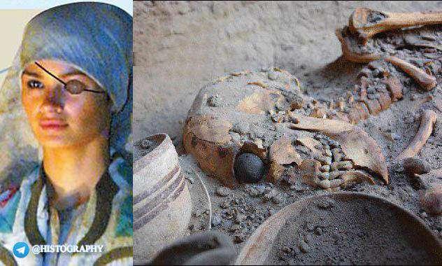 قدیمیترین چشم مصنوعی جهان متعلق به زنی ایرانی . بدست آمده از دولت شهر باستانی شهر سوخته با قدمتی 6 هزار ساله