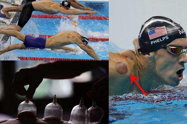 لکههای بدن مایکل فلپس قهرمان شنای آمریکا  در المپیک ،به دلیل استفاده از  طب سنتی بادکش است. گفته می شود باد کش کردن عضلات باعث بهبود گردش خون و تسکین درد می شود
