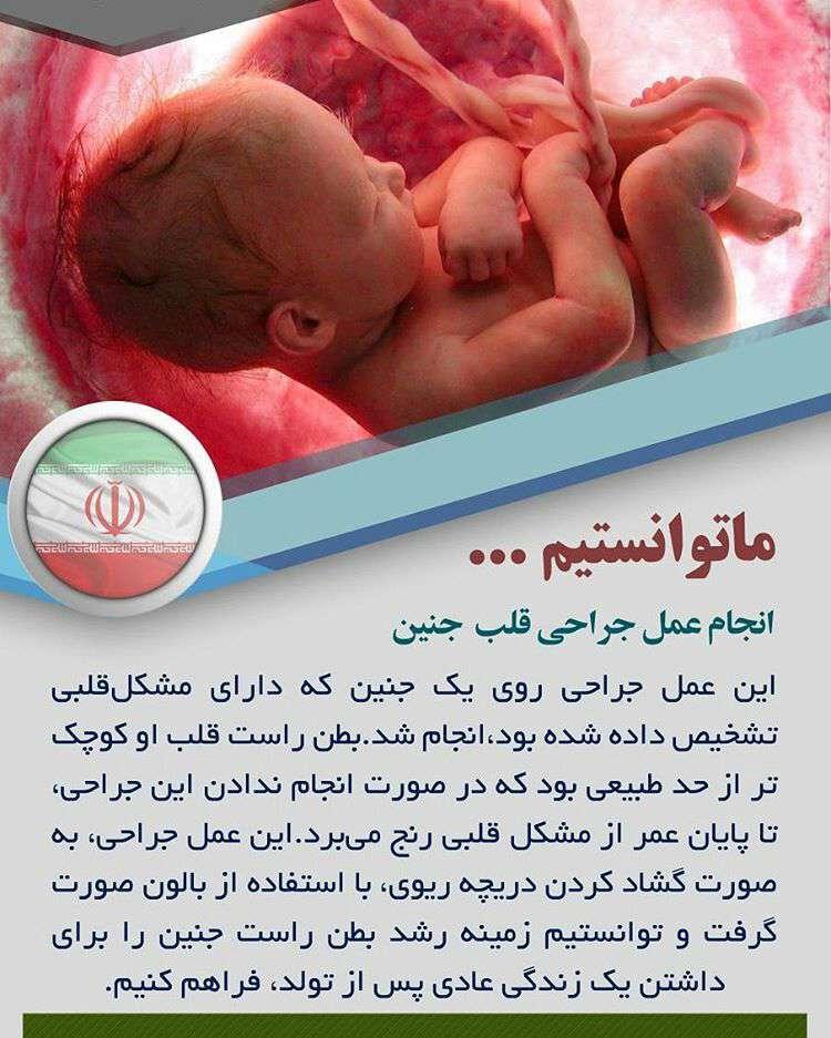 انجام عمل جراحی قلب جنین