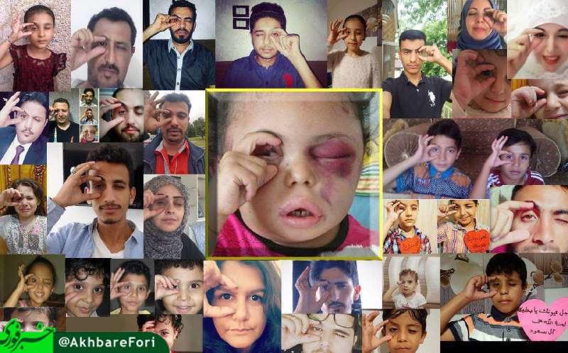 """یک همدردی جهانی برای """" بثینه"""" دختر بچه یمنی"""