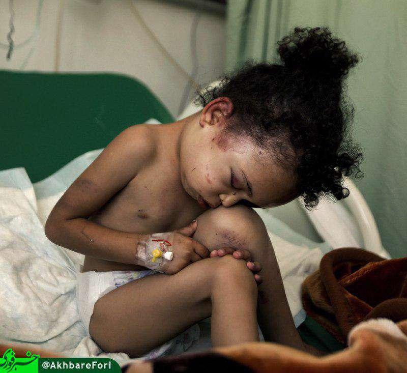 تصویری از بثینه؛ تنها بازمانده خانواده قتل عام شده در حمله هفته پیش ائتلاف سعودی به یمن