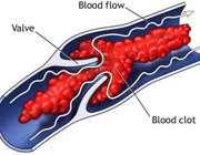توصیههای برای پیشگیری از لخته شدن خون - Bitrin.com
