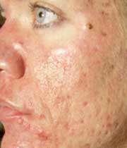 علت جوش صورت و بهترین درمان جوش