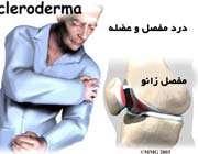 اسکلرودرمی
