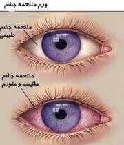 انواع بیماری های آلرژی چشمی