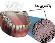تجمع باکتری ها روی زبان