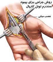 جراحي در سندرم تونل کارپال