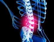 درمان کمر درد ( قسمت پایانی)