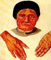 تشخيص و درمان بيماري لوپوس
