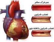 تصلب شرایین در قلب