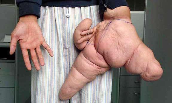 بزرگ ترین دست جهان !!!!!!!!! Www.Nanjoon.Com