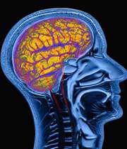 اسکن مغز