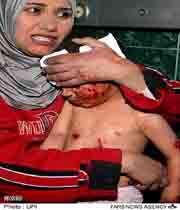 کودک غزه ای و مادرش