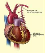 قلبهایی که در سینهی راست میتپند
