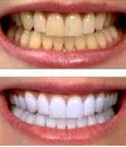 دندان  زرد و دندان سفید