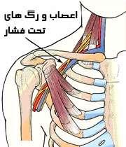 سندرم خروجی صدری
