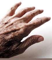 بیماری پارکنیسون چیست؟
