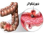 بیماری دیورتیکولار