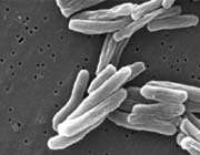 iranians find new strains of tuberculosis