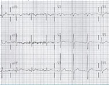 چگونه یک نوار قلب را تفسیرکنیم 2