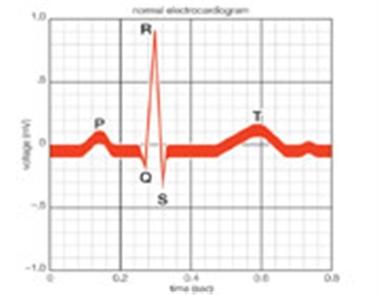 چگونه یک نوار قلب را تفسیر کنیم 1