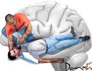 اولین کار پس از سکته مغزی
