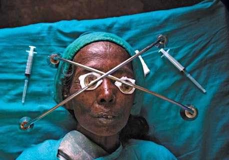 جراحی آب مروارید در جنوب آسیا