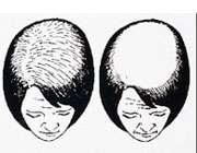 ریزش مو در زنان