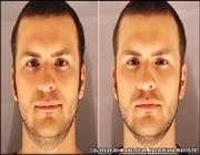 عکس راست: بعد از بی خوابی، عکس چپ: بعد از هشت ساعت خواب