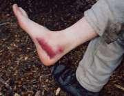 خونریزی داخلی بدن