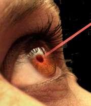 لیزر چشم