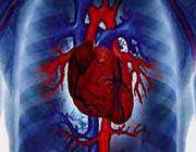irandan kalp hastalıkları tedavisine yeni yöntem