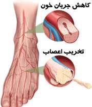 آسیب پا در نوروپاتی دیابتی