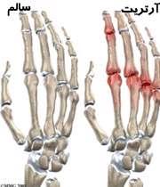 آرتریت مفاصل انگشتان دست
