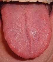زبان قرمز و دردناک