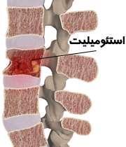 عفونت استخوان (استئومیلیت)