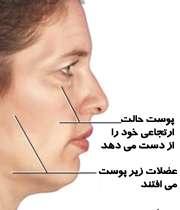 شل شدن پوست با افزایش سن