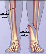 انواع شکستگی استخوان پا