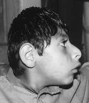 بیماری میکروسفالی
