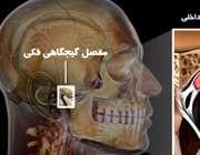 مفصل فکی گیجگاهی