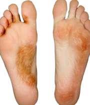 بیماری پای ورزشکار