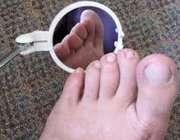 برسسی پا در بیماری دیابت