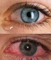 قرمزی چشم و اشک ریزش آن