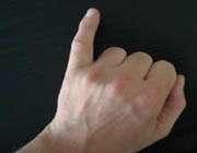 انگشت كوچك