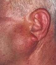توره سرطانی در گردن