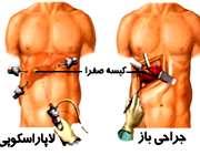 لاپاراسکوپی و جراحی باز کیسه صفرا